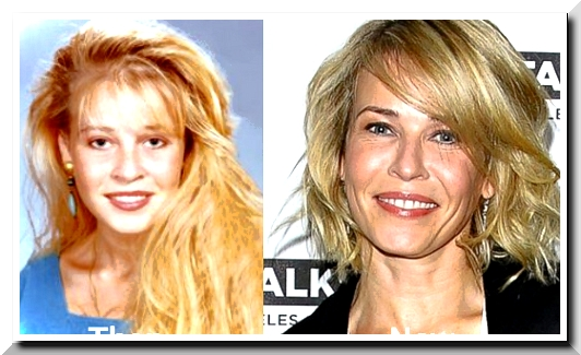 Chelsea Handler Plastic Surgery — Money can Buy The Perfect Beauty