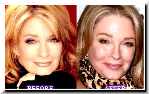 After Choosing Acting, Deidre Hall Also Chooses To Do Plastic Surgery