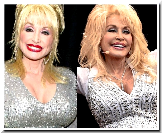 Dolly Parton Has Done Plastic Surgery to Almost All Her Body parts