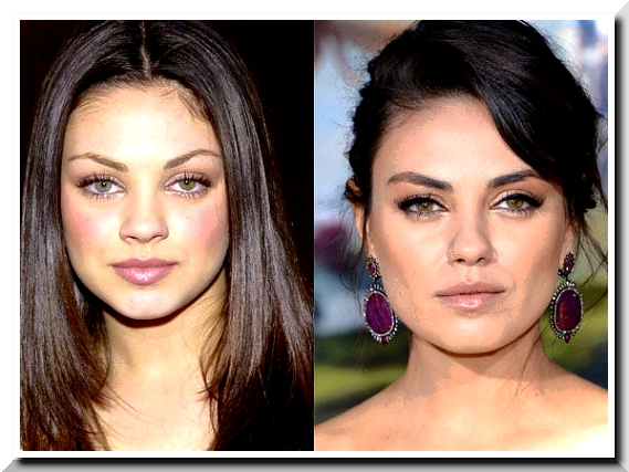 Mila Kunis Plastic Surgery — The Sexiest Woman Alive desires to Look Sexier